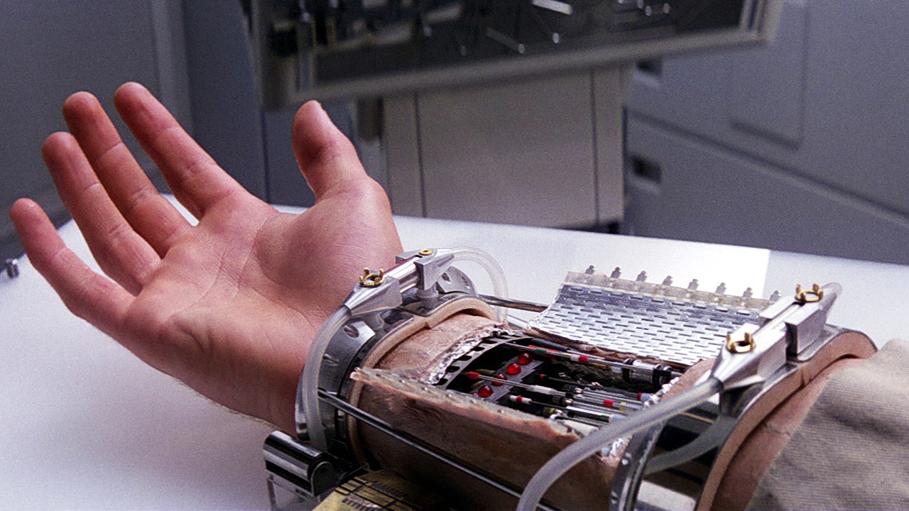 Высокоинтеллектуальный протез руки с камерой